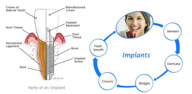 Dental Implant Method